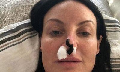 Người phụ nữ nhờ đỉa hút máu cứu chiếc mũi phẫu thuật thẩm mỹ hỏng