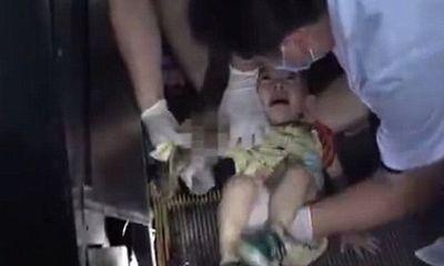Video: Bé gái 1 tuổi suýt bị thang cuốn nghiến gần đứt cánh tay