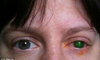 Người phụ nữ bị mù một bên mắt vì không tháo kính áp tròng khi bơi