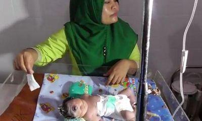 Bố mẹ suýt ngất khi thấy con chào đời chỉ có một mắt giữa trán