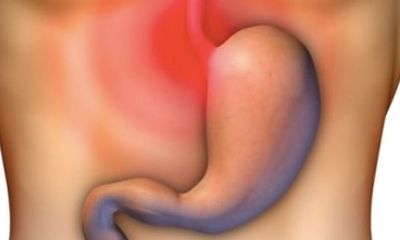 Đau bao tử: Nguyên nhân, triệu chứng, dấu hiệu và cách điều trị
