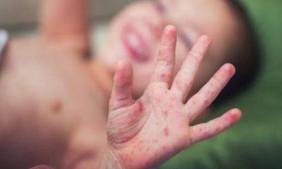 Virus EV71 quay trở lại khiến bệnh tay chân miệng trở nên nguy hiểm
