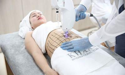 Lipotropic – Công nghệ đỉnh cao giảm béo không phẫu thuật