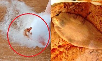 Video: Nổi da gà trước màn nặn mụn ra sán lá gan của cô gái