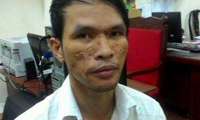 Kẻ đồng tính hành hạ bé trai ở Campuchia được tại ngoại do bị bệnh nan y