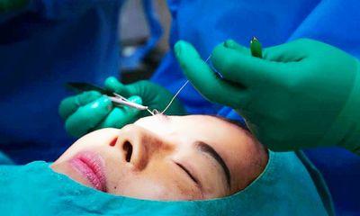 Điểm đặc biệt trong kỹ thuật cắt mí nâng cơ tại viện thẩm mỹ D'Vincy