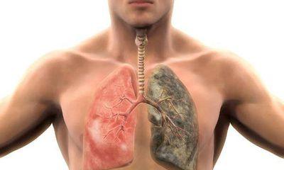 Cách để cứu lấy lá phổi bị tổn hại bởi thuốc lá