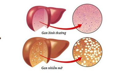 Tìm hiểu nguyên nhân ngày càng nhiều người Việt mắc bệnh gan nhiễm mỡ