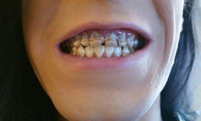 Uống 6 lon nước tăng lực mỗi ngày, chàng trai 21 tuổi mục nát cả hàm răng