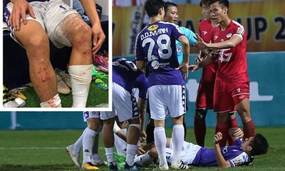 HLV Hà Nội FC phàn nàn pha vào bóng