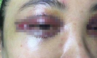 Mắt cô gái 19 tuổi chảy máu suốt 8 tiếng sau cắt mí ở spa