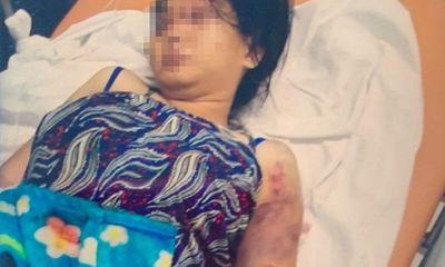 Vụ thai phụ 18 tuổi bị giam cầm, đánh sẩy thai: Nghi phạm đánh nạn nhân trong cơn phê ma túy