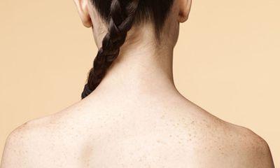 Mẹo trị sạch mụn lưng siêu đơn giản ngay tại nhà, không phải ai cũng biết