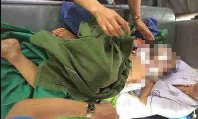 Bé trai 12 tuổi bị chó cắn lóc da đầu, mất 2 tai chuyển ra bệnh viện Việt Đức điều trị