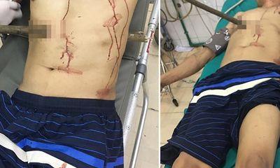 Quảng Ninh: Cứu sống nạn nhân bị cọc gỗ đâm xuyên người