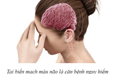 Thực phẩm bảo vệ sức khỏe Nattospes: Giải pháp hỗ trợ điều trị và phòng ngừa tai biến mạch máu não