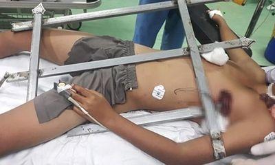 Nghệ An: Bé trai leo cây ngã bị rào sắt đâm xuyên ngực