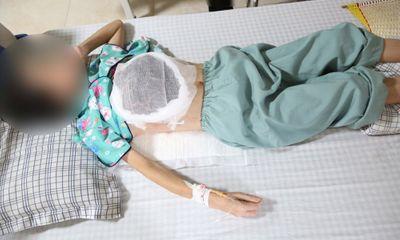 Chữa ung thư vú bằng thuốc nam, nữ bệnh nhân nằm chờ chết do hoại tử