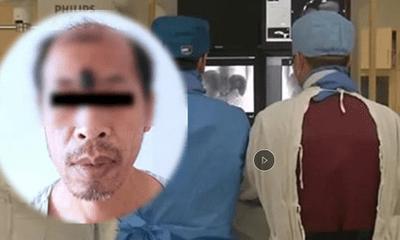 Người đàn ông bị ung thư ác tính do tự ý nặn mụn trên trán