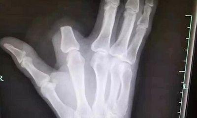 Bị rắn độc cắn, người đàn ông Trung Quốc chặt phăng ngón tay của mình