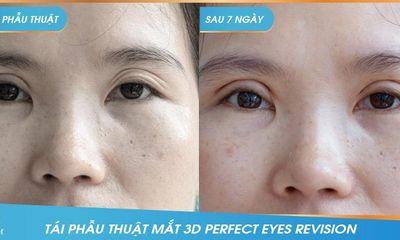"""Công nghệ tái phẫu thuật mắt """"3D Perfect Eyes Revision"""""""