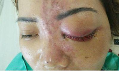 Tiêm filler nâng mũi giá 1,5 triệu đồng, thiếu nữ 15 tuổi mù mắt vĩnh viễn
