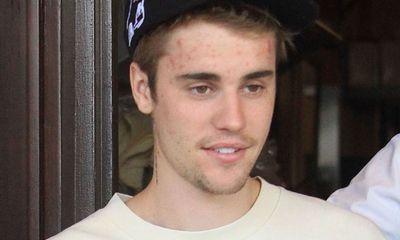 Căn bệnh mà hoàng tử nhạc pop Justin Bieber mắc phải nguy hiểm cỡ nào?