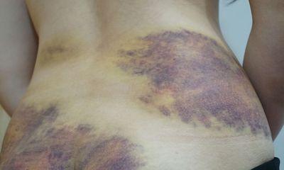 Làm việc với người chồng bị tố dùng thắt lưng bạo hành vợ ở Tây Ninh