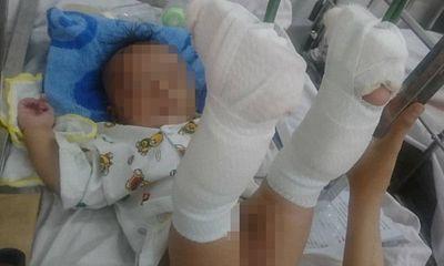 Lời khai của người cha đánh con 4 tháng tuổi xuất huyết não, gãy 2 chân
