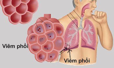 Cách phòng bệnh viêm phổi hiệu quả trong thời tiết nồm, ẩm