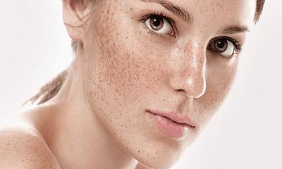 Nội tiết tố ảnh hưởng đến làn da phái đẹp thế nào?
