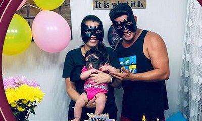 Con gái chào đời với vết bớt đen khổng lồ trên mặt, bố mẹ làm một hành động khiến ai cũng