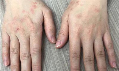 Cảnh báo tác hại của việc lạm dụng nước rửa tay khô