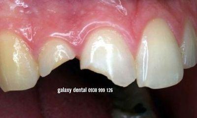 Y tế sức khỏe - Chân răng lung lay, dập lợi sau va chạm mạnh có thể tự lành không?