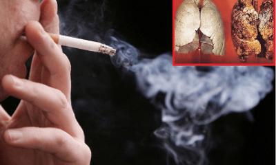 """Tumolung - Giải pháp """"vàng"""" cho người bị ung thư phổi"""