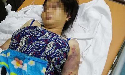 TP.HCM: Truy tố nhóm người tra tấn cô gái 18 tuổi đến chết thai để đòi nợ