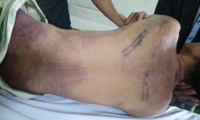Điều tra vụ phạm nhân tử vong trong trại giam với nhiều vết bầm tím