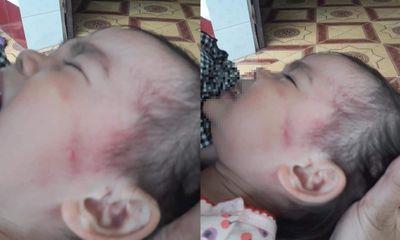 Làm rõ vụ bé bé gái 26 tháng tuổi vừa đi học được 3 ngày bị bầm tím má và thái dương