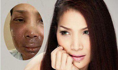 Khuôn mặt ca sĩ Hồng Ngọc giờ ra sao sau 1 tháng bị bỏng nồi xông hơi?