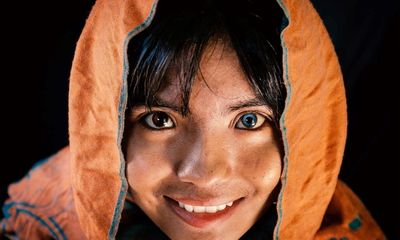 Kỳ lạ thiếu nữ có 2 màu mắt nhưng học lực mới là điều khiến mọi người ngỡ ngàng