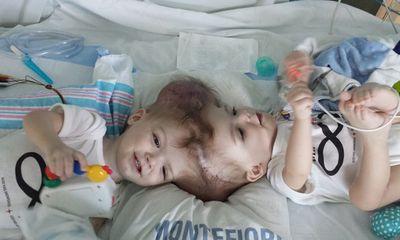 Những cặp bé song sinh dính liền người hiếm gặp trên thế giới, bố mẹ nghẹt thở chờ phẫu thuật tách rời