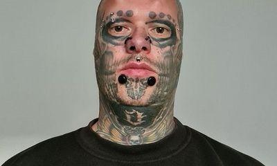 """Kinh hãi """"dị nhân"""" làm 17 cuộc phẫu thuật để trông giống đầu lâu dù bị gọi là"""