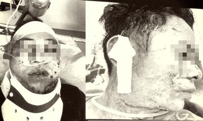 Vụ nổ súng truy sát 2 thanh niên ở Tiền Giang: Bí ẩn 2 người có biệt danh Voi và Cảnh