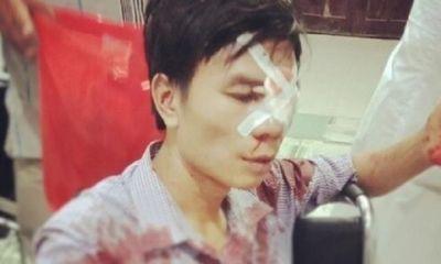 Thực hư vụ cán bộ địa chính xã ở Nghệ An bị tố lấy cán xẻng đánh người sau va chạm giao thông