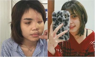 Bị hôn phu tạt axit hủy hoại nửa khuôn mặt, nhan sắc cô gái thay đổi ngoạn mục sau 2 năm