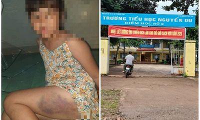 Vụ học sinh lớp 3 bị cô giáo đánh tím đùi ở Đắk Lắk: Gia đình nạn nhân nói gì?