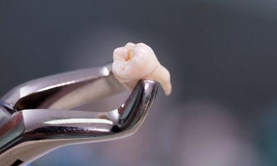 Nhổ 20 chiếc răng cùng lúc, người phụ nữ hôn mê trong 9 ngày rồi tử vong