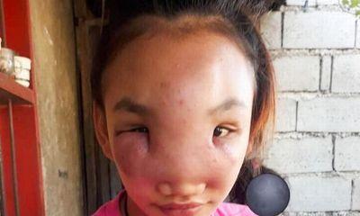 Nặn mụn trên mũi, cô gái 17 tuổi bất ngờ mắc bệnh lạ suốt 1 năm chưa khỏi