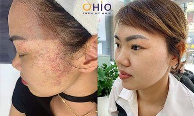 Giãn mao mạch vùng mặt có nguy hiểm không & giải pháp điều trị?