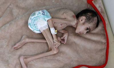 Nhói lòng bé trai gầy trơ xương nằm chiếm 1/4 chiếc chăn của bệnh viện, 7 tuổi nặng vỏn vẹn 7kg